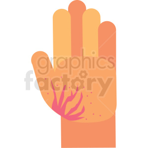 burned cartoon hand vector icon